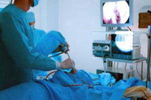 Cirugía Endoscopica Nasal | Dr. Barceló Colomer