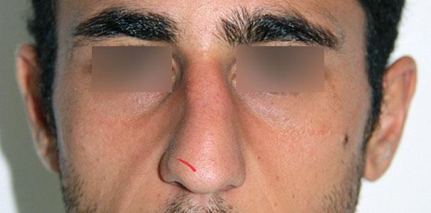 Rinoplatia Cerrada Unilateral | Dr. Barceló Colomer
