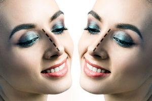 Rinoplastia Cirugía Estética Nasal | Dr. Barceló Colomer