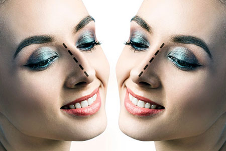Rinoplastia o Cirugía Estética Nasal