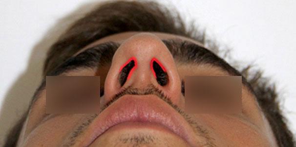 Rinoplatia Dr. Barceló Colomer