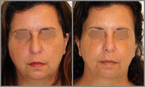 Antes/Después Rinoplastia Frontal   Dr. Barceló Colomer