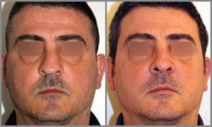 Antes/Después Rinoplastia Frontal | Dr. Barceló Colomer