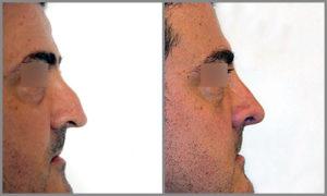 Antes/Después Rinoplastia Perfil   Dr. Barceló Colomer