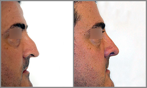 Antes/Después Rinoplastia Perfil | Dr. Barceló Colomer