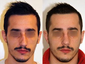 Paciente Rinoseptoplastia Traumatismo Nasal Septopiramidal | Dr. Barceló Colomer