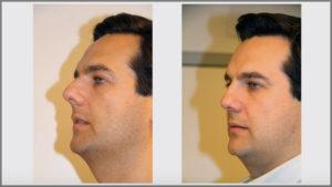Caso de Éxito de una Operación de Rinoseptoplastia por el Dr. Barceló Colomer