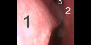 Desviaciones septales que se comportan como una rinitis alérgica | Doctor Barceló
